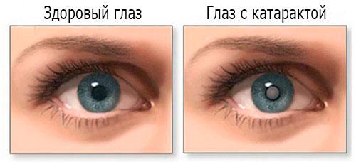 симптомы катаракты