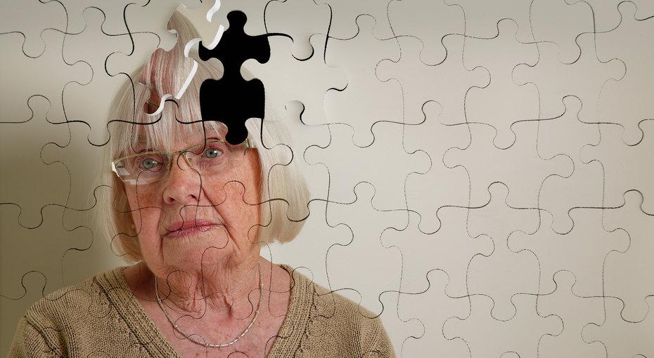 формирование Альцгеймера